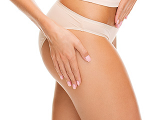 RF Cellulite Improvement